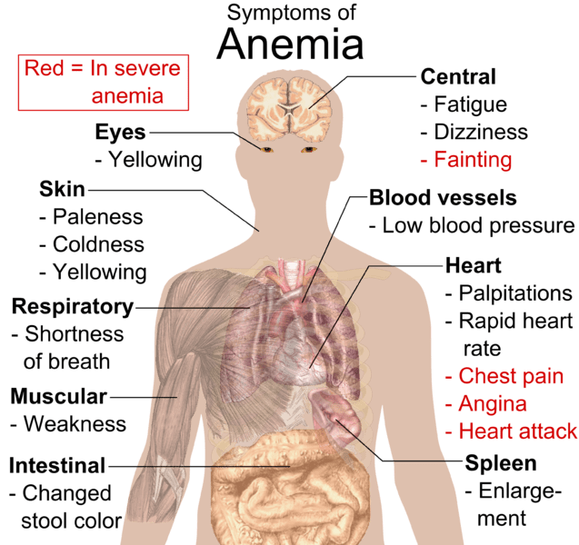 Symtoms of Anemia
