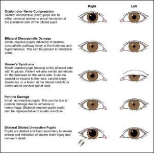 pupiller hjärnskada