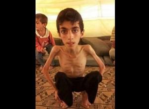 الجوع يلتهم السوريين9