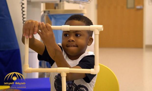 شاهد بالصور:  أطباء ينجحون في زراعة يدين لطفل في أميركا