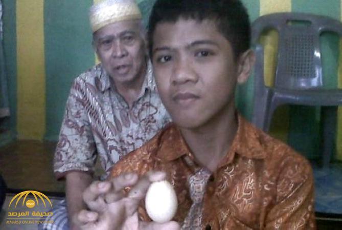 """فيديو: حيّر الأطباء وأدهشهم .. هذا الفتى """"يبيض"""" كالدجاج ووضع 20 بيضة خلال عامين!"""