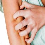 """تعرف على مرض""""الجرب""""وأعراضه .. وهذه طرق علاجه و الوقاية منه"""