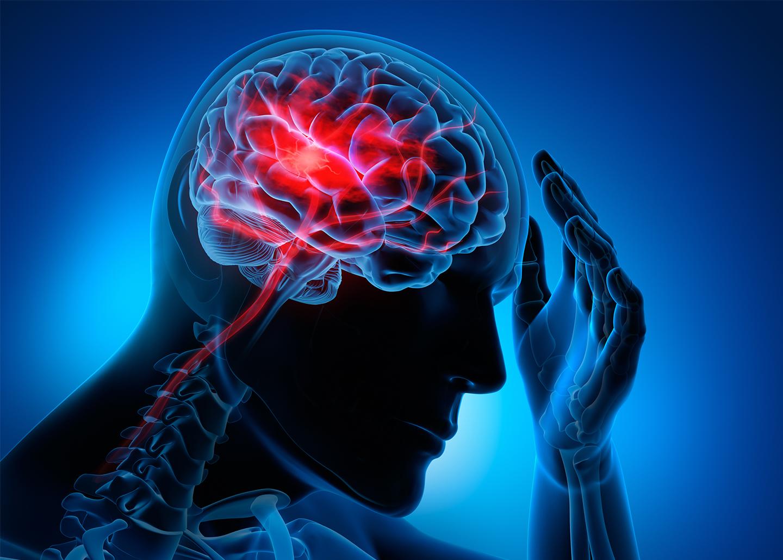فقاعة محمص راحة اعراض جلطة الدماغ عند النساء Alterazioni Org
