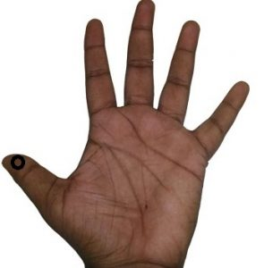 Acupressure Point in finger to cure headache