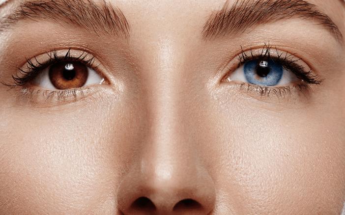 لماذا يمتلك البعض عيون بألوان مختلفة تعرف على تغاير لون القزحيتيْن