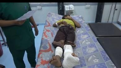 Photo of إصابة طفل برصاص قناص حوثي في مديرية التحيتا بالحديدة (فيديو)