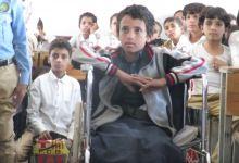 Photo of أطفال اليمن المصابون في الحرب .. قصص مأساوية