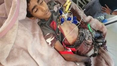 Photo of ألغام الحوثيين تقتل 4 مدنيين وتصيب آخر في مديرية ميدي بحجة