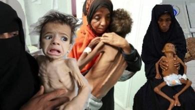 Photo of الأمم المتحدة تخصص 30 مليون دولار لمحاربة الجوع في اليمن