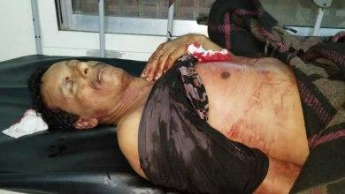 Photo of قذيفة حوثية تقتل وتصيب 4 مدنيين وسط مدينة تعز