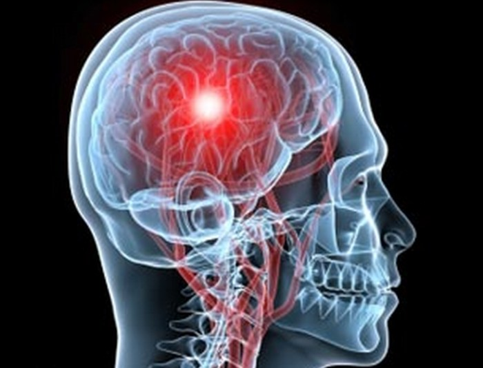Electroconvulsive Therapy Changes Key Areas of the Human Brain