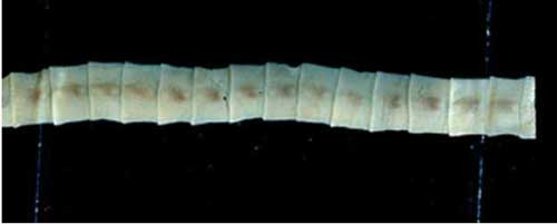 Fresno Man Pulls 5 1/2 Foot Tapeworm from his Body