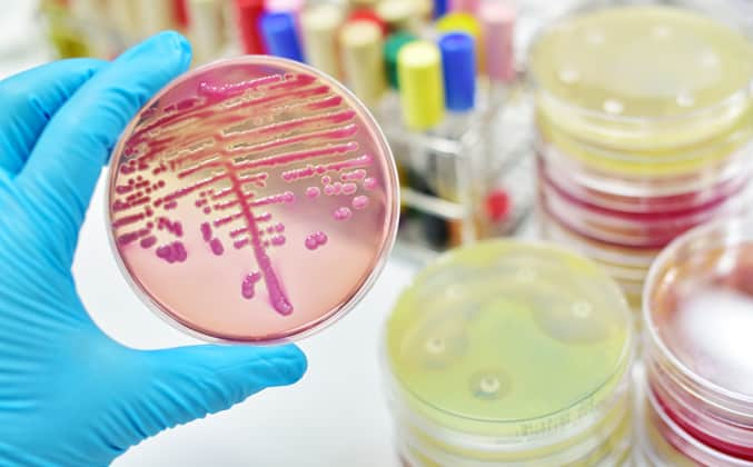Urine of Kidney Disease Patients Contains Diverse Mix of Bacteria