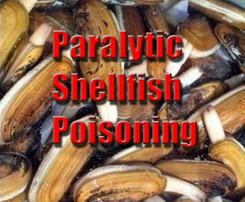 Recent Alaska Death Due to Paralytic Shellfish Poisoning; Alaskans Should Know the Health Risks When Harvesting Shellfish