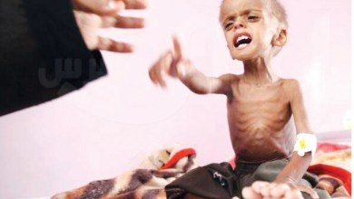 صورة إنها لعنة أطفال اليمن.. السعودية تُطرد من مجلس حقوق الإنسان
