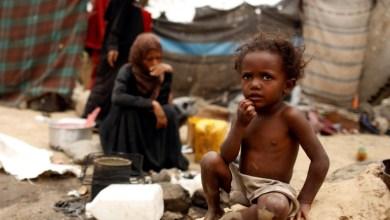 صورة منظمة الإنسان العالمية : اليمن تستغيث .. أوقفوا الحرب على اليمن أيها الأغبياء .؟!