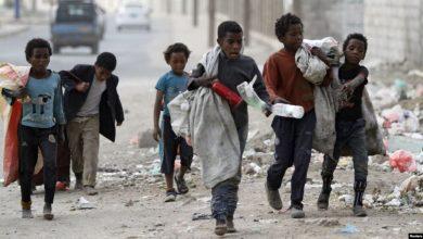 صورة أطفال اليمن يموتون ببطئ فيما العالم يكتفى بالمراقبة .؟!
