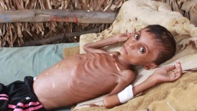صورة منظمة الإنسان العالمية : أوقفوا الحرب .. في اليمن ذبحت طفولة الإنسانية .؟!