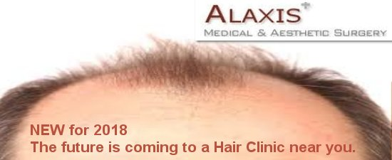 Hair transplant treatment in Singapore using FUE