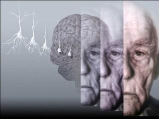 psicologa-gijon-alba-calleja-psicologa-alzheimer-biologia