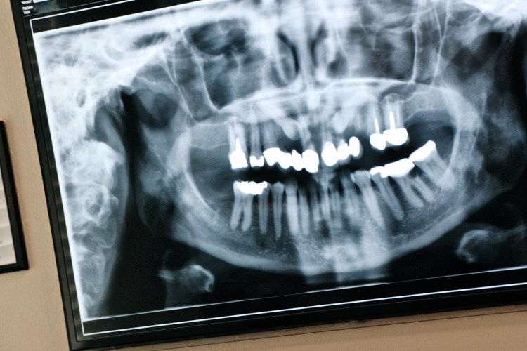 Panoramic x-ray image on wall-mounted screen