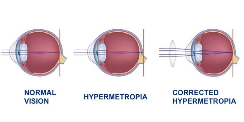 hypermetropia - Dr. Alberto Bellone