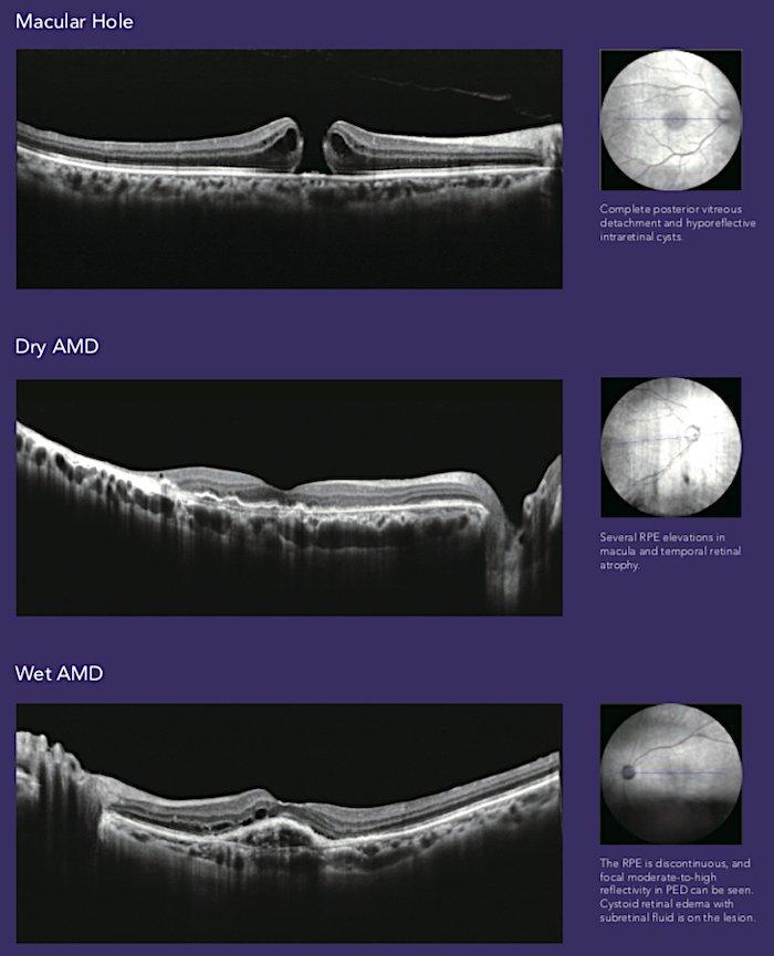 Tomografia coerenza ottica_Mocean_4000_2_Dr. Alberto Bellone