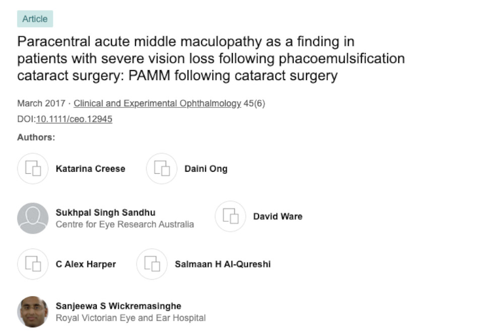 paracentral acute middle maculopathy