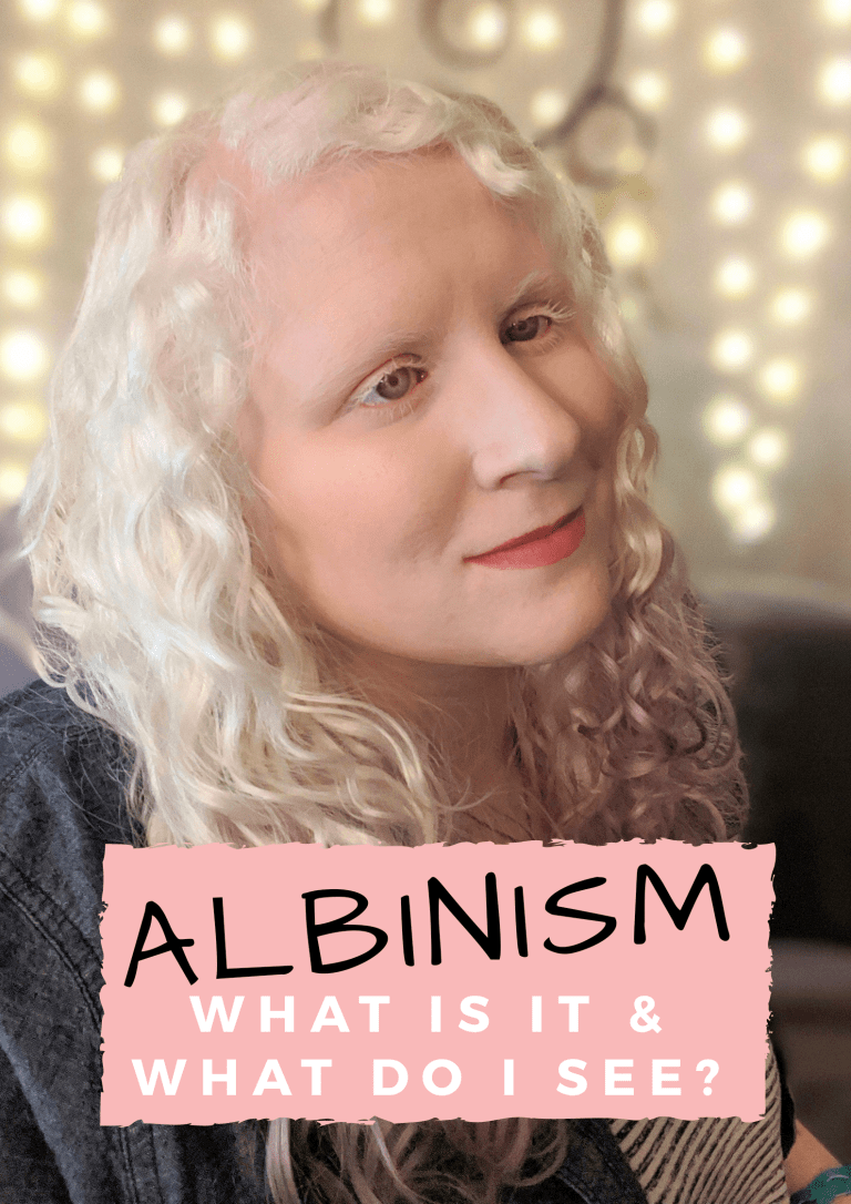 Albinism: What is it & What do I see featured image
