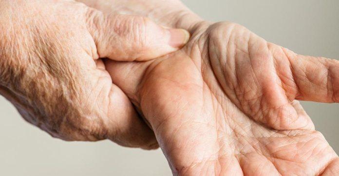 Día Nacional de la Artritis
