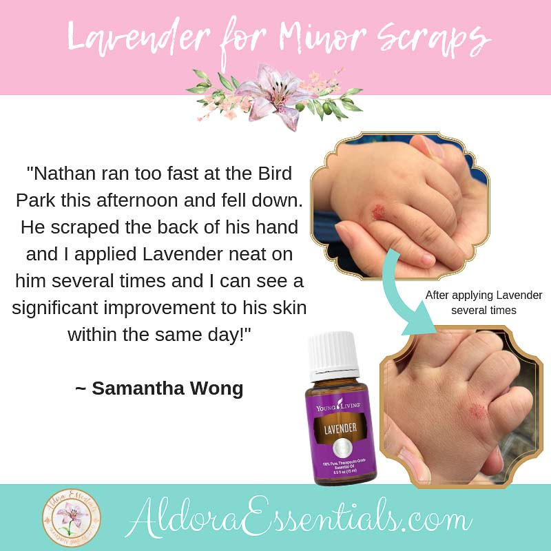 YLEO, Young Living, Lavender, Lavender Essential Oil, Cuts, Minor Scraps, Natural Remedy
