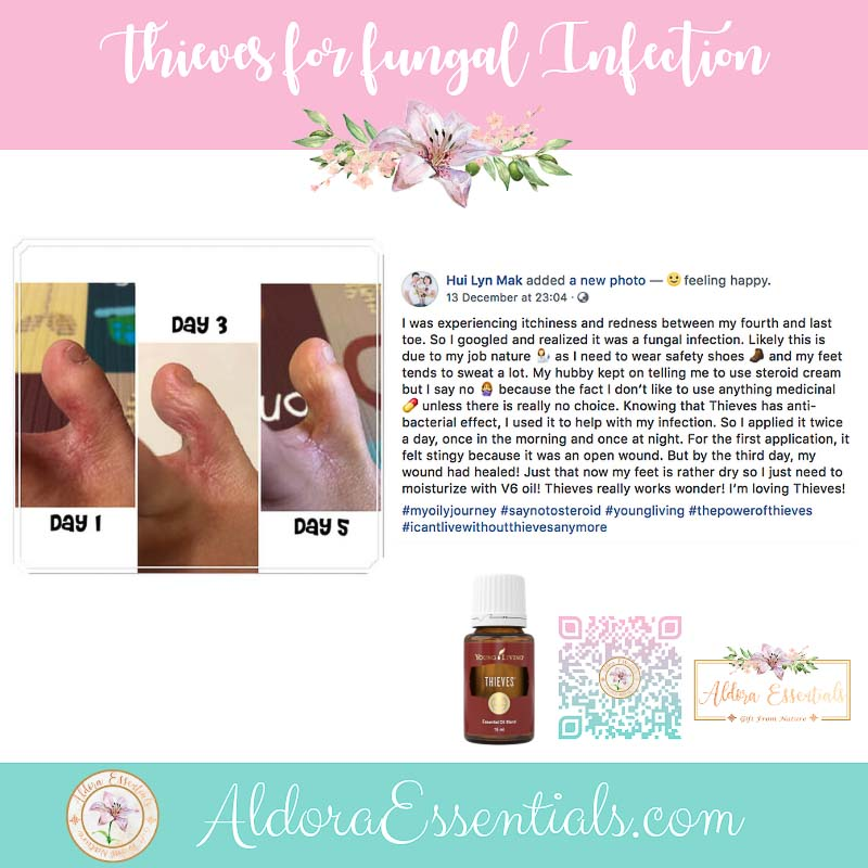 Thieves Essential Oil, Essential Oil Blend, infection, fungal infection, anti-inflammatory, YL, Young Living