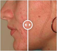 Acne behandeling dokter Aeilda Dijkstra Peeling Blaricum