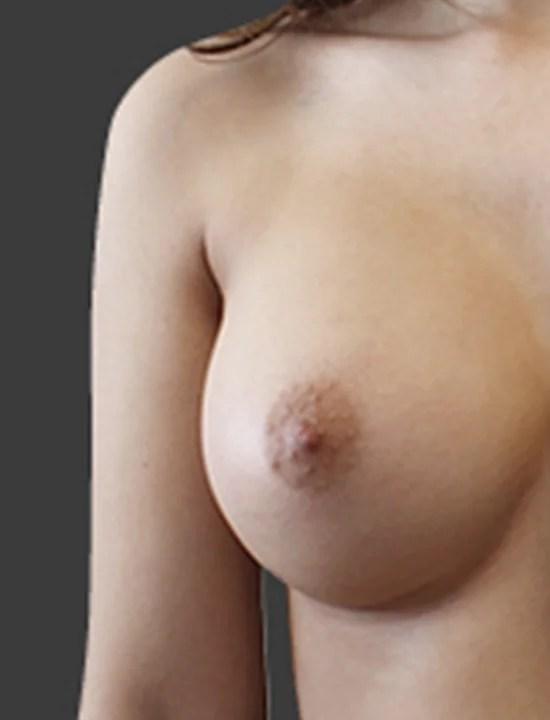 Efter brystforstørrende operation med implantat