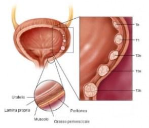 Varie patologie