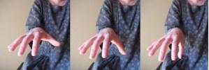 拇指の掌側外転の動き
