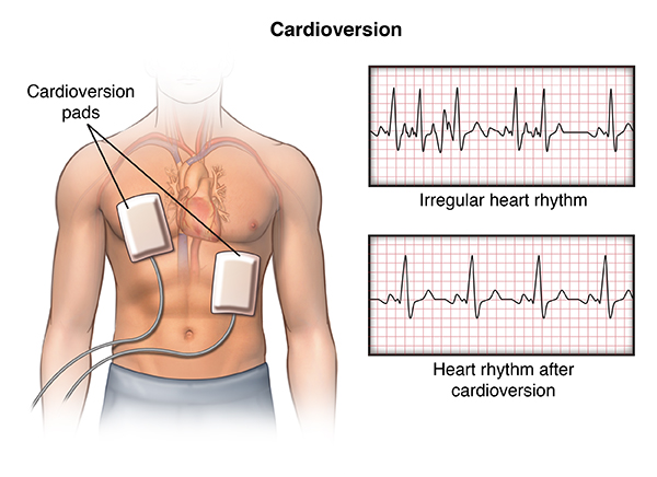 HHW cardioversion