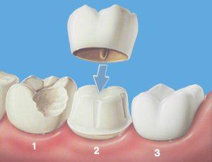 как се поставя коронка, сравнение между разрушен зъб, такъв с коронка и здрав
