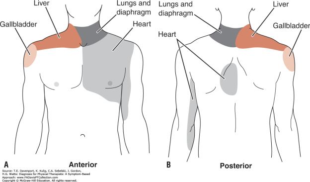 does acupuncture work - gallbladder referral pain pattern shoulder