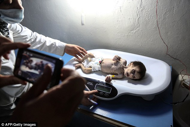 Heartbreaking photos show a malnourished baby wailing in hunger as he is treated at a clinic in Syria