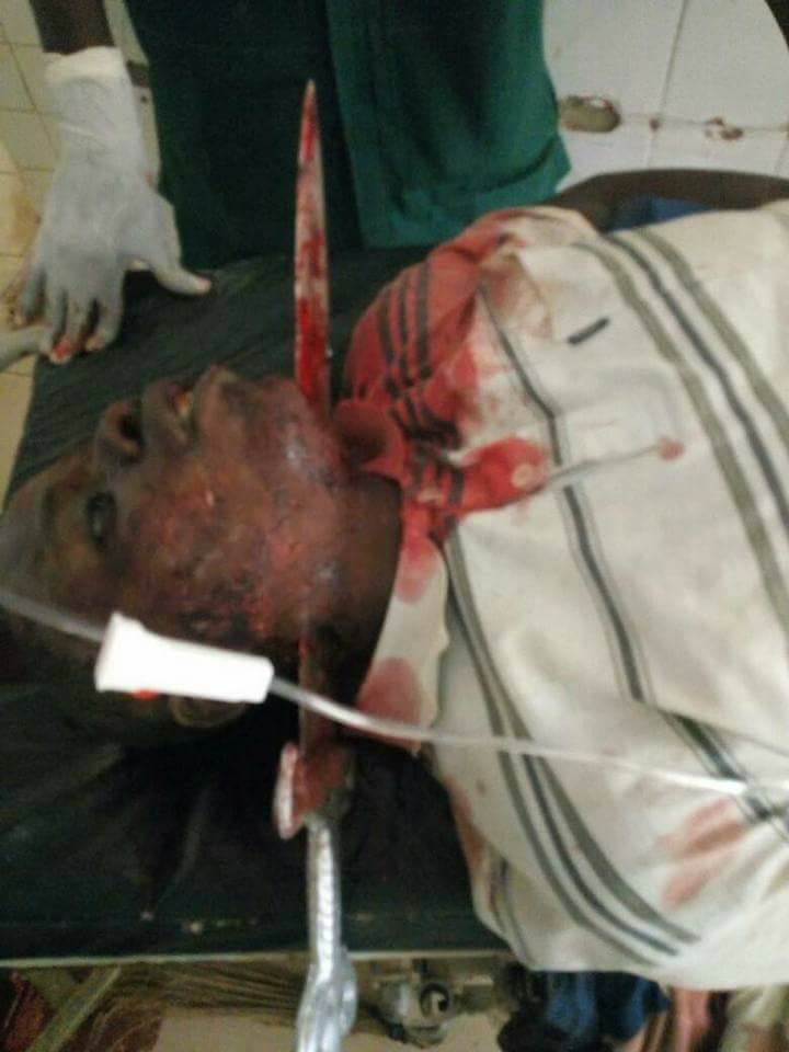 Graphic: Doctors rescue man who was stabbed in the neck by his friend in Sokoto