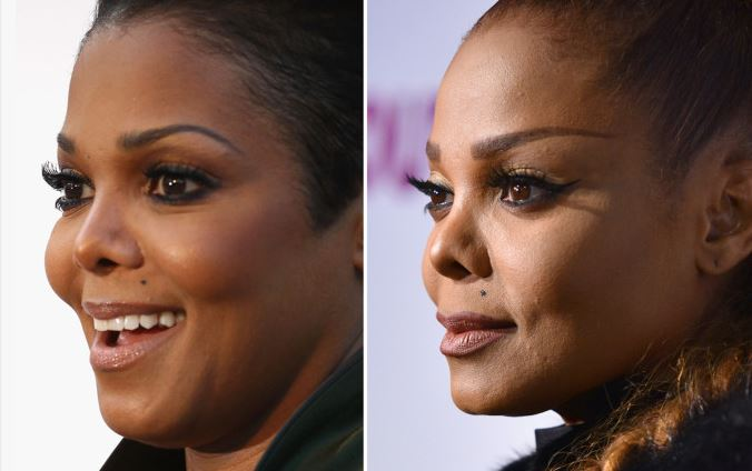 Plastic surgeon says Janet Jackson?s nose appears to be ?collapsing? (Photo)