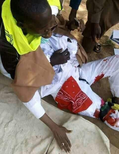 Photos: The Shiite leader shot by police during a protest in Abuja a few weeks ago has died