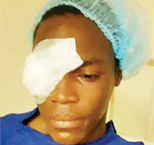 Update: Secondary school student stabbed by classmate in Lagos loses sight in the left eye, culprit arrested