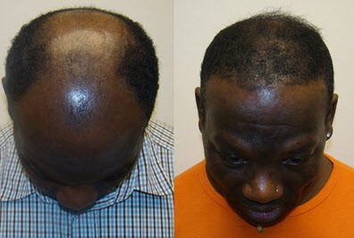 New discovery helps a desperate 57 year old abuja man to re-grow hair, reverse hair loss and cure baldness in 14 days!
