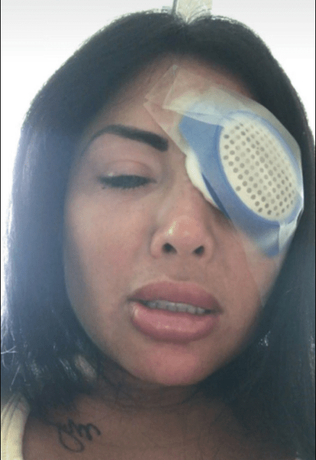 Instagram model blinded after surgery to change her eye colour goes wrong.. (photos)