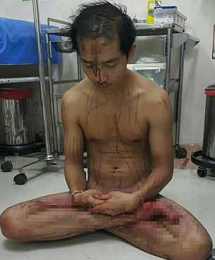 Man cuts his own pen!s out of excitement from watching porn