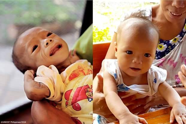 Transformation photos of a once severely malnourished child