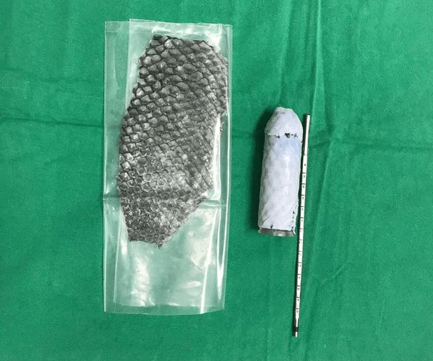 Woman born without vagina has one made out of fish skin in pioneering reconstructive surgery