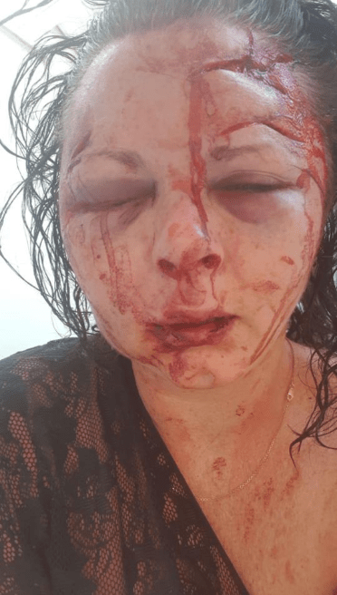 See how badly this lady was disfigured by a man because she refused to have sex with him (disturbing photo)